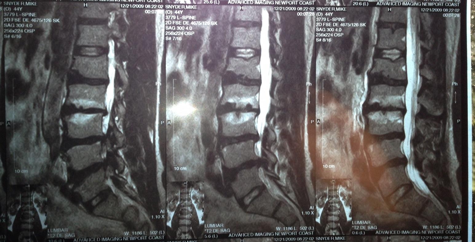 Dr. Mike's Lumbar MRI - 4 herniated discs