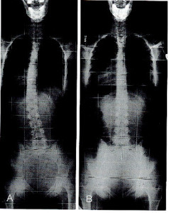 x-ray full spine before and after