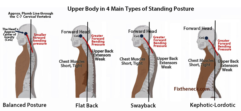 Poor Posture Treatment