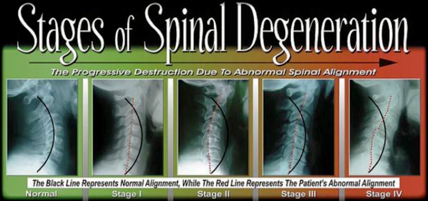 Degenertive Disc Disease