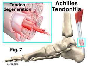 achilles_tendonitis
